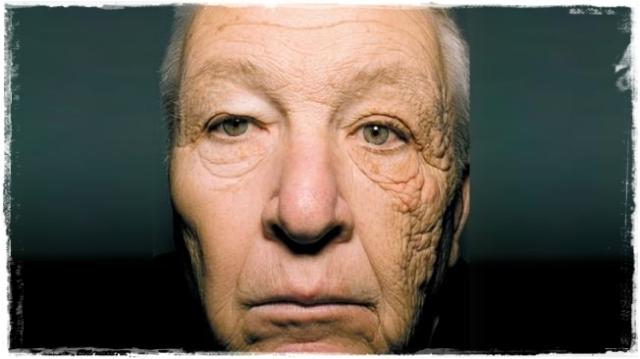 Esta foto muestra a un conductor de autobús y como el sol le produjo envejecimiento prematuro de la piel en el lado expuesto al sol.
