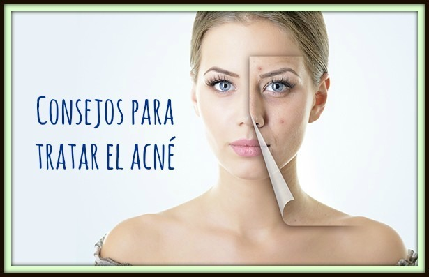 consejos-tratar-acne-1 eltocadordevero